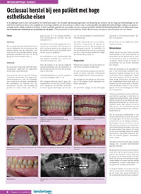 Tandartsenwereld, september 2015 | Meutermans Tandheelkunde
