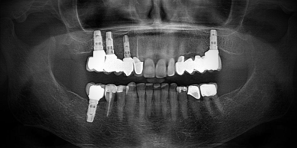 CASUS 10: een fraaier uiterlijk met implantaten en composiet