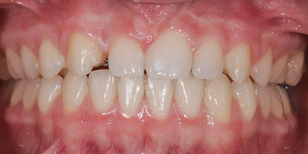 CASUS 11: herstel van een misvormde tand na ongeval