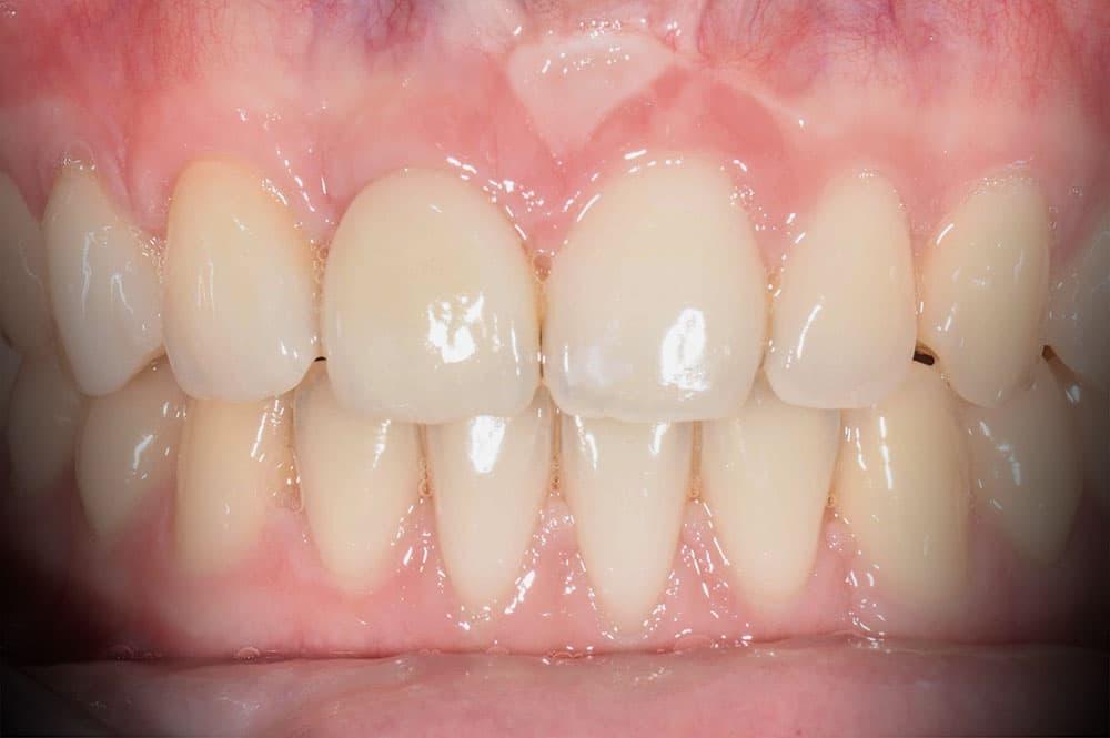 Herstel van een misvormde tand na ongeval