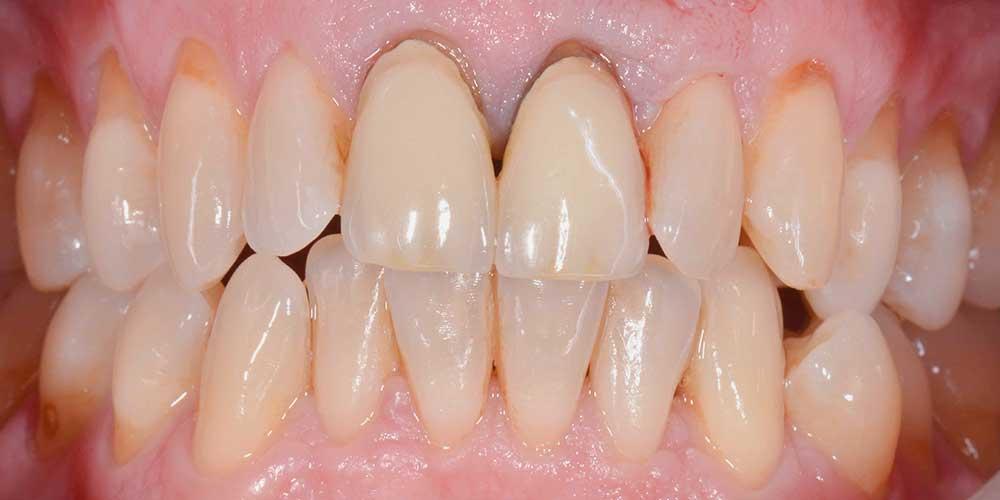 CASUS 14: tandvleescorrectie en nieuwe porseleinen kronen