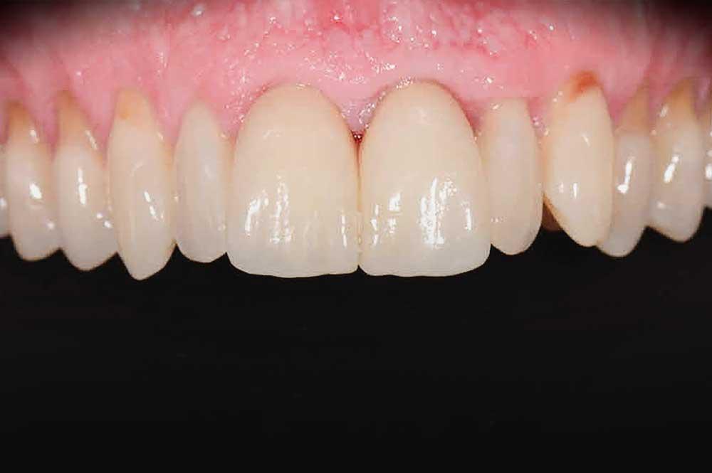 Porseleinen kronen na tandvleescorrectie