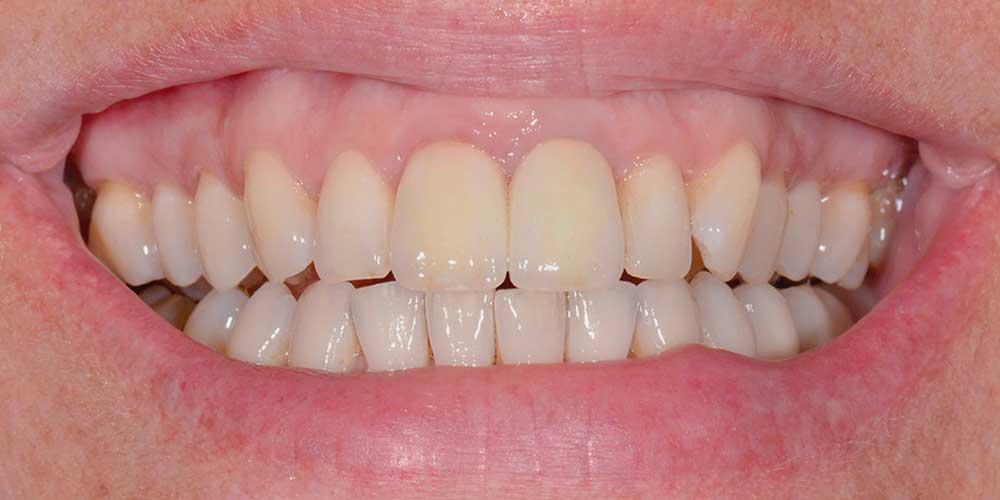 CASUS 15: kronen weer in verhouding na tandvleescorrectie