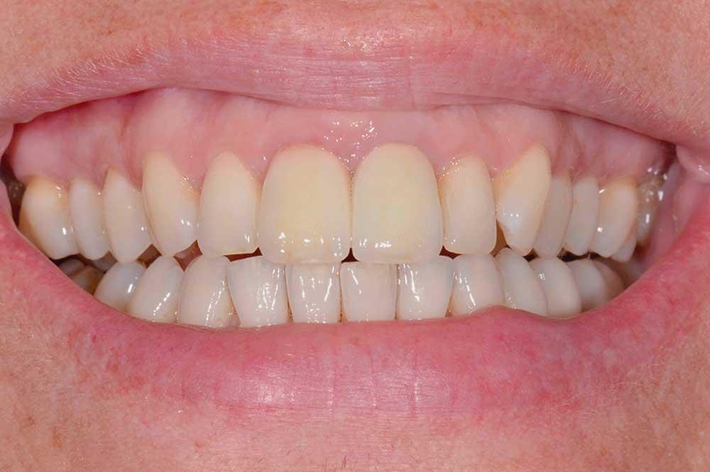 Kronen vervangen na tandvleescorrectie
