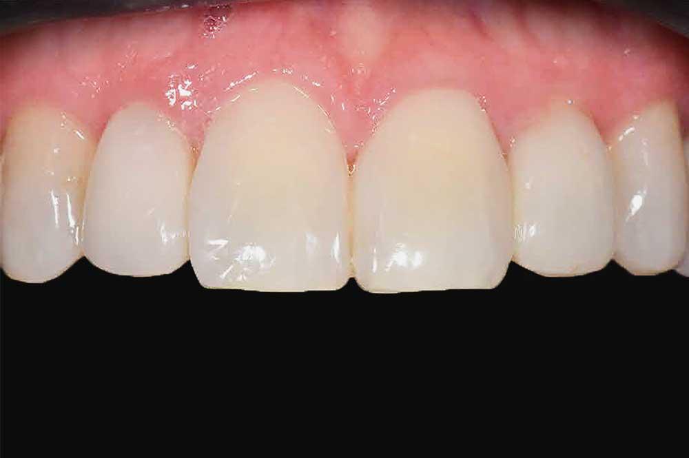 Spleetjes tussen tanden mooi wit opgevuld
