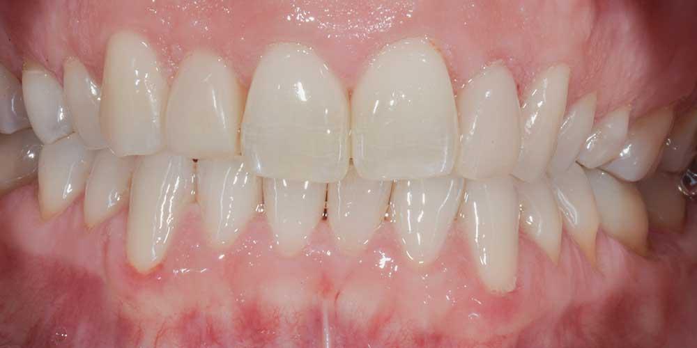 CASUS 17: mooi geheel na tandvleescorrectie en vullingen