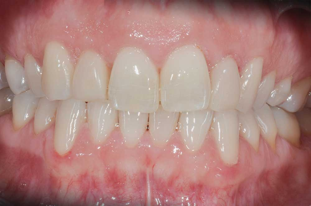 Mooi geheel na tandvleescorrectie en vullingen