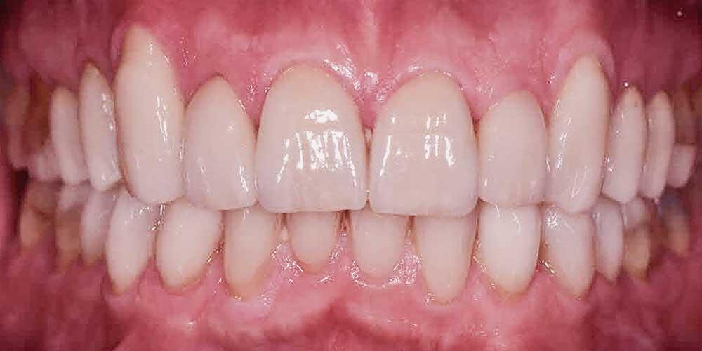 CASUS 20: nieuwe mond met gedeeltelijke kronen en facings