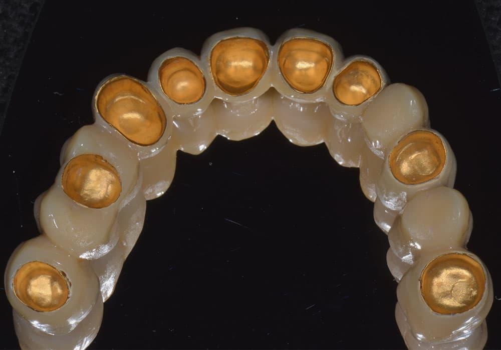 CASUS 21: reconstructie van ontbrekende tanden