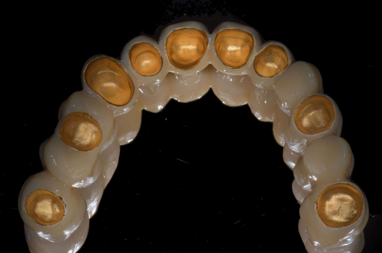 Reconstructie van ontbrekende tanden